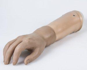 Протези верхніх кінцівок